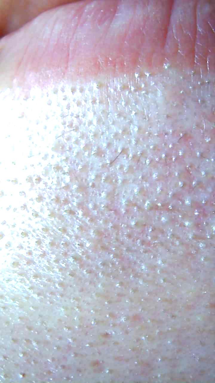 あごの下の毛穴